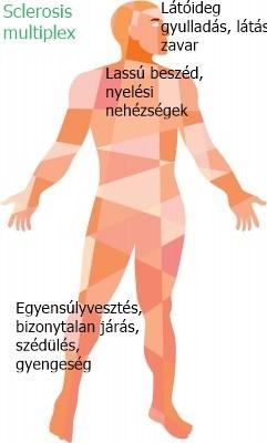 Szklerozis Multiplex Tünetei