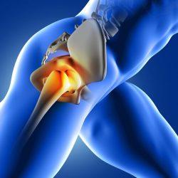 Csípőprotézis Műtét Után